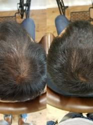 薄毛で悩んでいる人に朗報!髪の毛は増やせるんです!